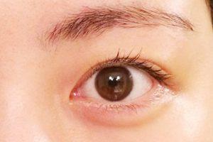 【花粉症対策】目のセルフケア - 目のかゆみや腫れなど