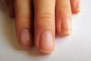 爪の間の汚れを落とそう!爪の中が汚くなる原因と予防法は?